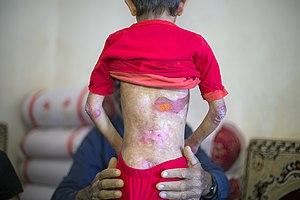 بیماری پروانه ای یا بیماری ای بی در کودکان مناطق محروم جنوب کرمان- ایران 05.jpg