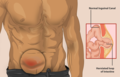 A man with an Inguinal Hernia.png