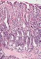Barrett's mucosa, low-grade dysplasia, low-power view, H&E.jpg