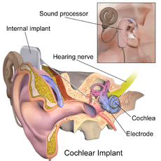 Blausen 0244 CochlearImplant 01.png