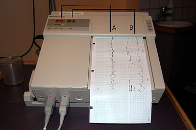 Cardiotocography Wikipedia