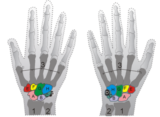 Kienbock disease is a rare bone disorder of unknown etiology characterized clinically by osteonecrosis of the carpal lunate, eventually leading to collapse of the lunate bone impacting wrist function