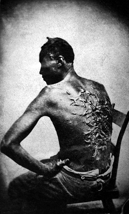 Abolitionist imagery focused on atrocities against slaves (1863 photo of Gordon) Cicatrices de flagellation sur un esclave.jpg