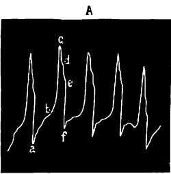 FI-d065-fig. 13 - Cardiogramme normal.png