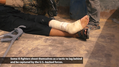 ISIL fighter with self-inflicted wound.png
