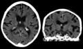 Kolloidzyste - 91jw- CT nativ axial und coronar - 001.png