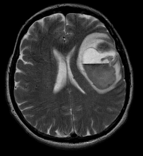 File:Melanoma met ax t2.jpg