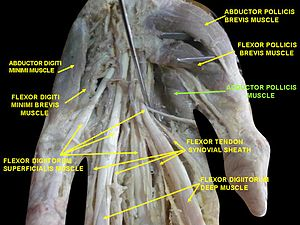 Adductor pollicis muscle - Image: Slide 6BBBB