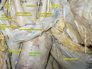 Ascending aorta - Image: Slide 7eeee