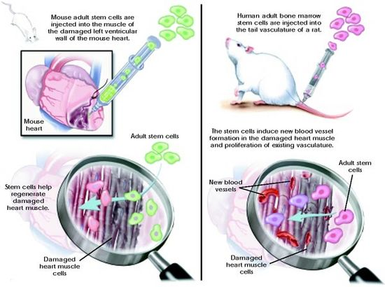 Stem cell therapy diabetic neuropathy