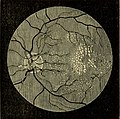 The student's guide to diseases of the eye (1884) (14775847311).jpg