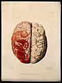 A diseased brain. Coloured stipple etching by W. Say after F Wellcome V0009777.jpg