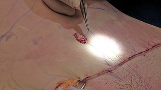 Abdominoplasty - Reconstruction of the umbilicus (belly button) following an abdominoplasty surgery. The original umbilicus is sutured into a new hole created by the surgeon.