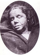 Mortuary photograph of McKenzie: a middle-aged woman with thick lips