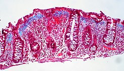 Collagenous colitis (4 of 4).jpg