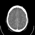 Computed tomography of human brain (22).png