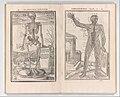 De dissectione partium corporis humani libri tres MET DP345241.jpg