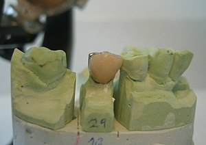 A Porcelain Fused To Metal Crown For Tooth No 29 On Its Stone Model It Is Now Ready Be Cemented Into The Patients Mouth Prosthetic Does Not