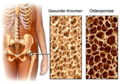 Gesunder Knochen - Osteoporose.png