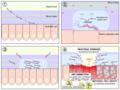 H pylori ulcer diagram en.png