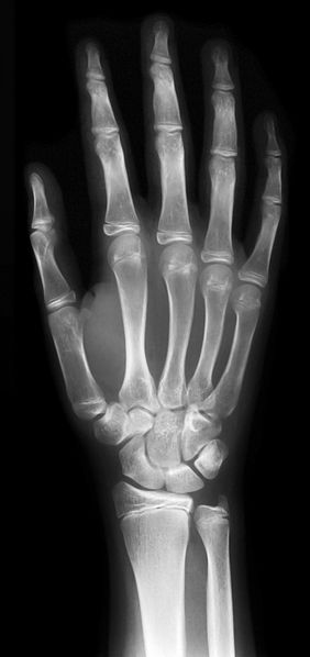 File:Hand-x-ray.jpg