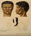 Head, neck, hand, foot and hair of a non-European woman. Col Wellcome V0008457.jpg