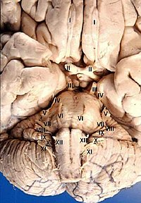 Human brain anterior-inferior view description.JPG