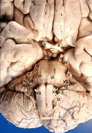 Cranial nerves - View of the human brain from below showing the cranial nerves on an autopsy specimen