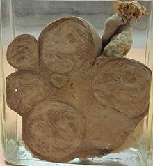 Uterine fibroid - Wikipedia