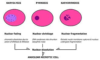 Karyolysis - Morphological characteristics of karyolysis and other forms of nuclear destruction.