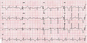 ECG from an individual with long QT syndrome demonstrating T-wave alternans