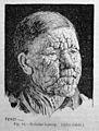 Patrick Manson, Tropical Diseases, Nodular leprosy. Wellcome L0029469.jpg