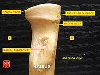 Radius, radial head - anterior view