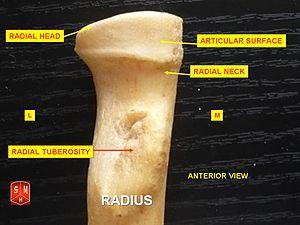 Radial tuberosity - Image: Radius