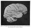 Site of lesion in various forms of aphasia Wellcome L0023670.jpg