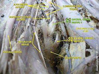 Sacral spinal nerve 1 - Image: Slide 4z