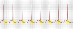 An example of an ECG tracing typical of uncommon AV nodal reentrant tachycardia. Highlighted in yellow is the P wave that falls after the QRS complex.