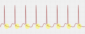 AV nodal reentrant tachycardia.png
