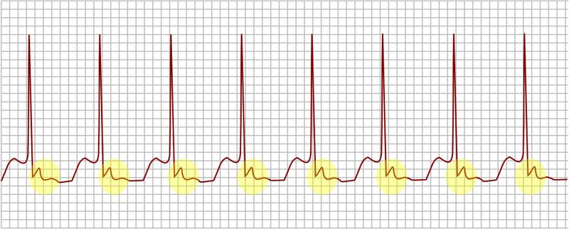 File:AV nodal reentrant tachycardia.png