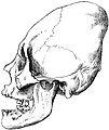 Artificially flattened Skull of ancient Peruvian.jpg