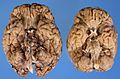 Autopsy brain.jpg