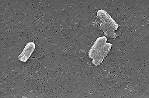 Citrobacter freundii (sekundärelektronenmikroskopisches Bild)