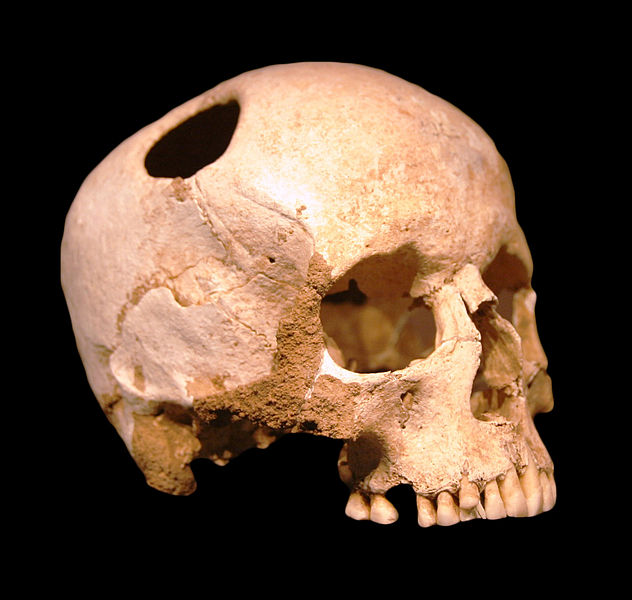 File:Crane-trepanation-img 0507 crop.jpg
