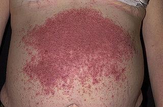 malattia bollosa caratterizzata dalla comparsa di vescico-bolle e che colpisce in prevalenza i maschi in età giovanile