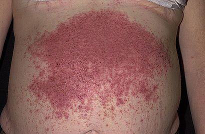 Dermatitis-herpetiformis.jpg