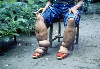 Lymphatic filariasis Medical condition
