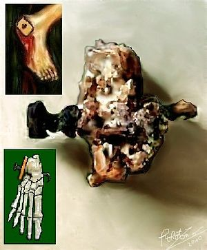 Historical reliability of the Gospels - Skeletal remains of Jehohanan, 1st-century CE crucifixion victim from Givat HaMivtar in Jerusalem, with a nail still lodged inside the heel bone.