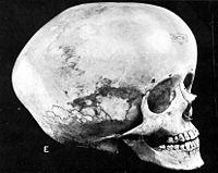 Hydrocephalic skull.jpg