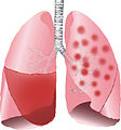 Lobar Pneumonia and bronchopneumonia illustrated.jpg