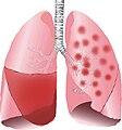 Lobar Pneumonia and bronchopneumonia illustrated.jpg